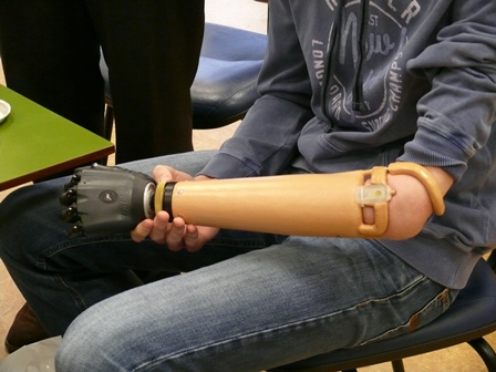 BeBionic v2 hand with Open Fitting technology